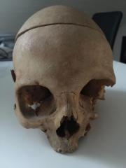 Echter menschlicher Schädel (